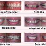 Bọc răng sứ nguyên hàm giá bao nhiêu tiền hiện nay?