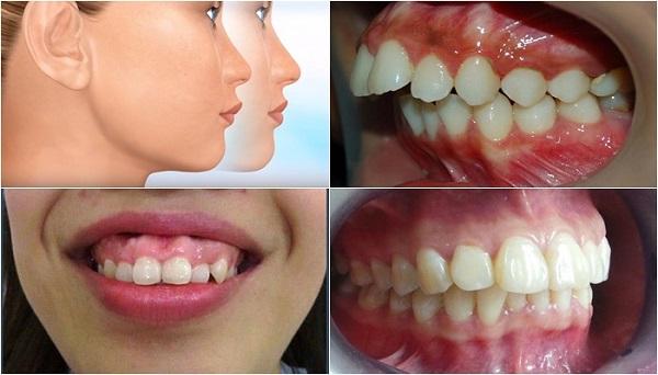 chinh rang ho khong can nieng, chỉnh răng hô không cần niềng, chỉnh răng hô, cách chữa răng hô nhanh nhất, chữa răng hô tại nhà, chỉnh răng không cần niềng, dụng cụ kéo răng hô, cách chỉnh răng hô, niềng răng hô hàm trên