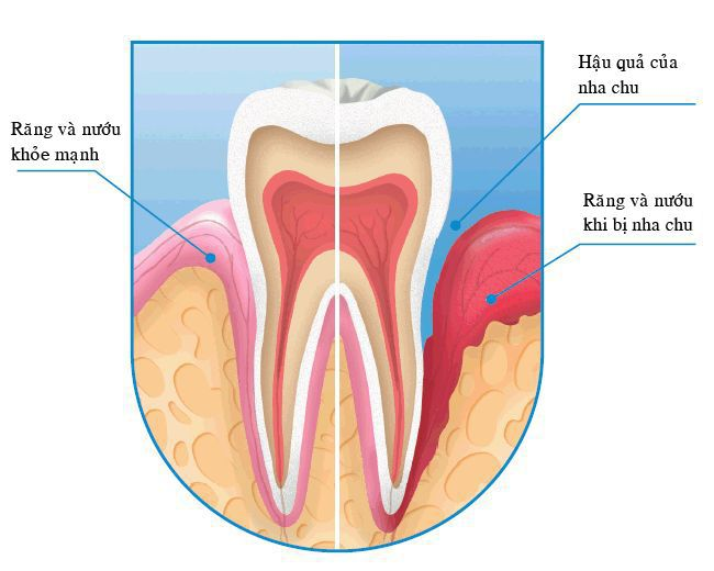 cách điều trị bệnh viêm quanh răng,viêm quanh răng,điều trị viêm quanh răng,bệnh viêm quanh răng,viêm quanh răng mạn tính,viêm quanh răng là gì,viêm quanh răng và cách điều trị,viêm quanh răng cấp,viêm quanh răng tiến triển chậm,viêm quanh răng số 8,viêm quanh răng khôn