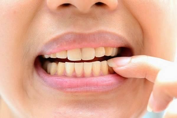 cách làm trắng răng xỉn màu ngay tại nhà