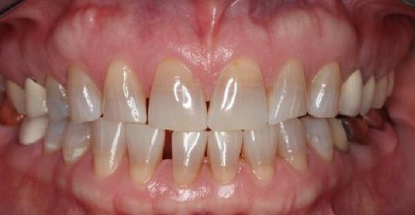 cách làm trắng răng xỉn màu
