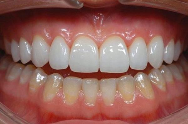 Chi phí bọc răng sứ cho răng sâu là bao nhiêu tiền, bọc răng sứ cho răng sâu giá bao nhiêu