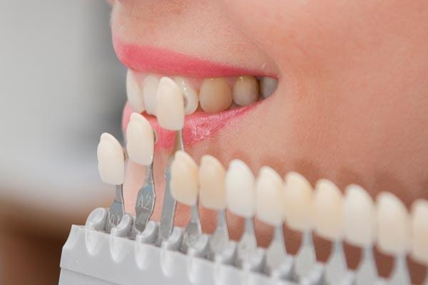 có nên bọc sứ răng cửa không, có nên bọc sứ răng cửa, có nên bọc răng sứ cho răng cửa không, bọc sứ răng cửa, bọc răng sứ cho răng cửa thưa, bọc răng sứ cho răng cửa