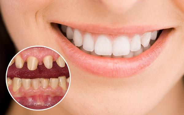 bọc sứ răng cửa,bọc sứ răng cửa giá bao nhiêu,bọc sứ răng cửa bị lệch,bọc sứ răng cửa bị mẻ,giá bọc sứ răng cửa,có nên bọc sứ răng cửa không,bọc sứ răng cửa thưa,bọc sứ răng cửa hô,chi phí bọc sứ răng cửa,có nên bọc sứ răng cửa,có nên bọc răng sứ cho răng cửa,bọc sứ 4 răng cửa,bọc răng sứ 2 răng cửa bao nhiêu tiền,giá bọc răng sứ răng cửa,bọc răng sứ cho răng cửa bị hô
