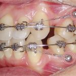 Đánh lún răng là gì? Đánh lún răng chữa hở lợi có được không?