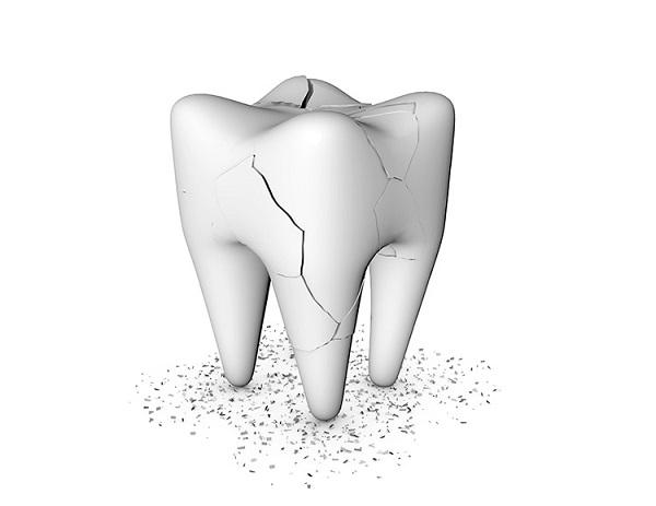 hiện tượng răng bị nứt nên làm gì,răng bị nứt,răng bị nứt có tự lành,răng bị nứt nhẹ,răng bị nứt vỡ,răng bị nứt nên làm gì,hiện tượng răng bị nứt,răng bị nứt đôi,tại sao răng bị nứt,răng bị nứt có sao không,răng bị nứt phải làm sao,răng bị nứt có trám được không,răng bị nứt chân,răng bị nứt có lành lại không