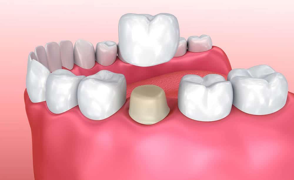 răng bị nứt có trám được không, răng bị nứt có lành lại không, răng bị nứt chân phải làm sao, vết trám răng bị nứt, cách chữa răng bị nứt, hiện tượng răng bị nứt nên làm gì, răng bị nứt, răng bị nứt có tự lành, răng bị nứt nhẹ, răng bị nứt vỡ, răng bị nứt đôi, tại sao răng bị nứt, răng bị nứt có sao không, răng bị nứt phải làm sao, răng bị nứt có trám được không, răng bị nứt chân, răng bị nứt có lành lại không, răng bị nứt nẻ, răng bị nứt làm sao, răng bị rạn nứt, chân răng bị nứt, xử lý răng bị nứt, cách điều trị răng bị nứt, cách khắc phục răng bị nứt, nguyên nhân răng bị nứt, nứt răng, răng bị nứt dọc, nứt dọc thân răng, răng nứt phải làm sao, răng hàm bị nứt đôi
