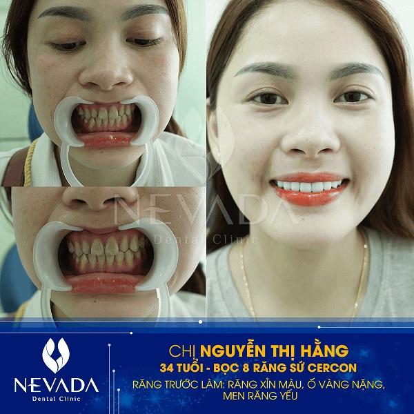 mài răng nanh nhọn giá bao nhiêu tiền