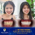 Bọc răng sứ chữa hô? Dẫn đầu xu hướng HOT NHẤT 2020 bạn có biết?!