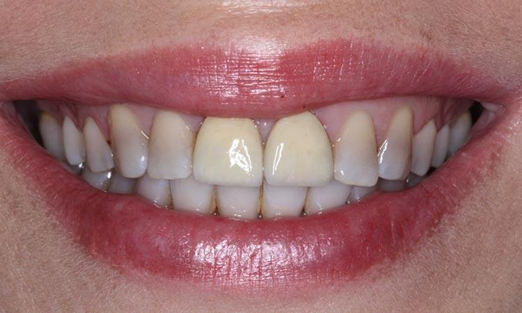 bọc răng sứ bị thâm,bọc răng sứ bị thâm lợi,nguyên nhân bọc răng sứ bị thâm lợi,cách khắc phục bọc răng sứ bị thâm lợi,bọc răng sứ bị đen nướu,chân răng bọc sứ bị đen,bọc răng sứ có bị thâm lợi không