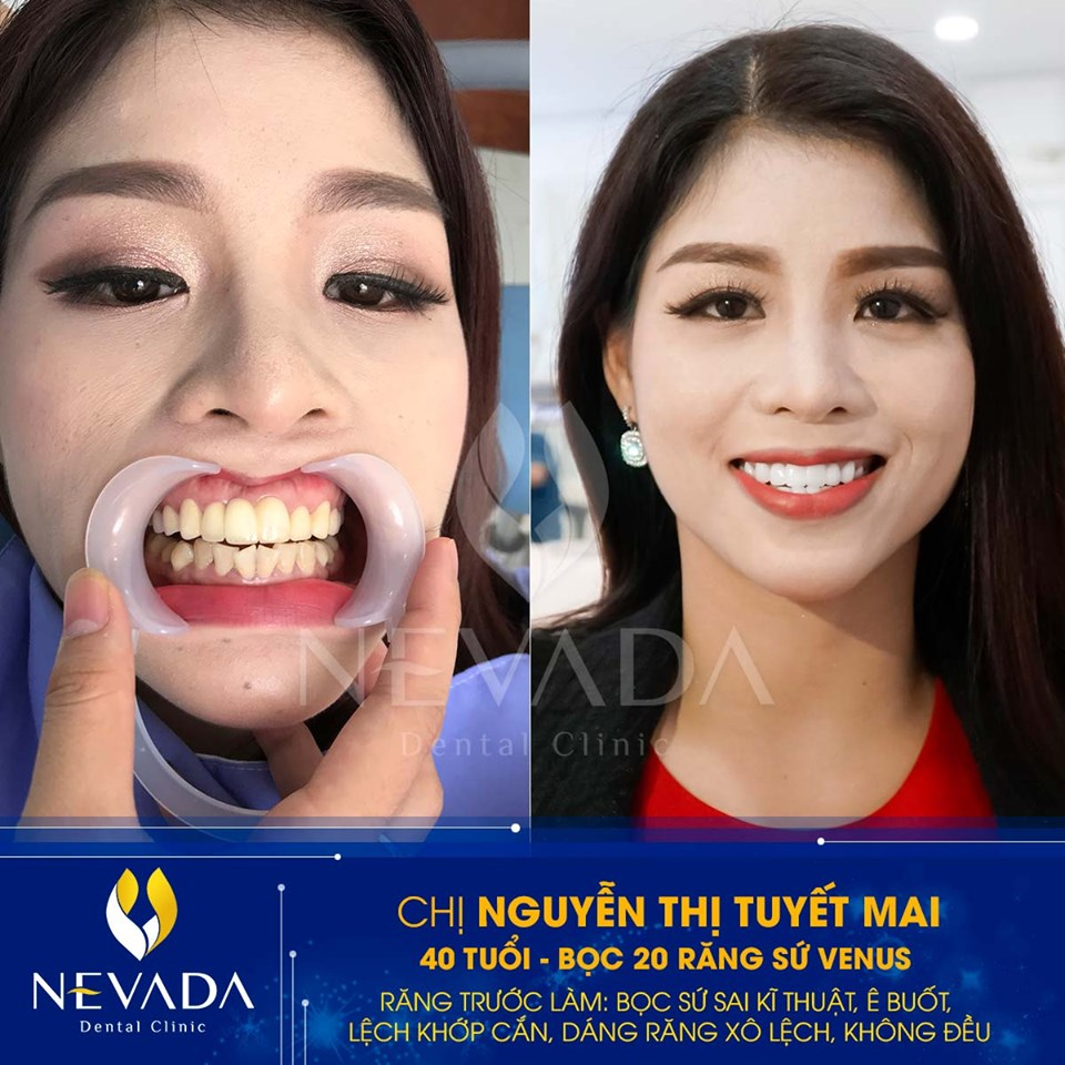 nguyên nhân bọc răng sứ thâm lợi, bọc răng sứ bị thâm, bọc răng sứ bị thâm lợi, nguyên nhân bọc răng sứ bị thâm lợi, cách khắc phục bọc răng sứ bị thâm lợi, bọc răng sứ bị đen nướu, chân răng bọc sứ bị đen, bọc răng sứ có bị thâm lợi không, làm răng sứ bị thâm nướu, làm răng sứ bị thâm lợi