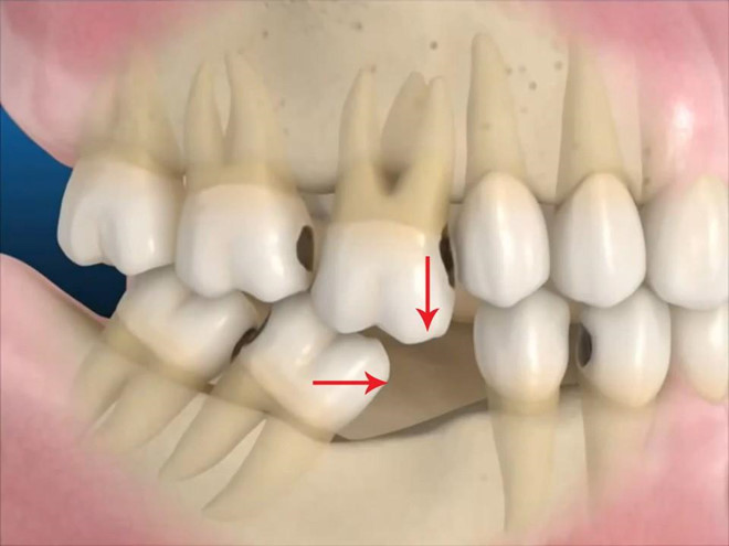 nhổ răng cấm, nhổ răng cấm bao nhiêu tiền, nhổ răng cấm có nguy hiểm không, nhổ răng cấm có đau không, nhổ răng cấm có ảnh hưởng gì không, có nên nhổ răng cấm, nhổ răng cấm giá bao nhiêu, nhổ răng cấm có sao không, nhổ răng cấm có bị hóp má không, nhổ răng cấm hết bao nhiêu tiền, nhổ răng cấm có mọc lại không, nhổ răng cấm có bị sao không, nhổ răng cấm bị sâu có nguy hiểm không, giá nhổ răng cấm bị sâu, tự nhổ răng cấm có được không, nhổ răng cấm giá bao nhiêu tiền, nhổ răng khôn bao nhiêu tiền, nhổ răng khôn bao nhiêu tiền tphcm, nhổ răng khôn hết bao nhiêu tiền, nhổ răng khôn mất bao nhiêu tiền, nhổ răng khôn tốn bao nhiêu tiền, nhổ răng cấm hàm dưới bao nhiêu tiền,