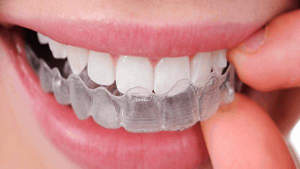 niềng răng vô hình bao nhiêu tiền, nẹp răng trong suốt giá bao nhiêu, niềng răng trong suốt bao nhiêu tiền, giá niềng răng trong suốt, nẹp răng trong suốt, niềng răng trong suốt giá bao nhiêu, niềng răng trong suốt clear align, niềng răng trong suốt clear aligner