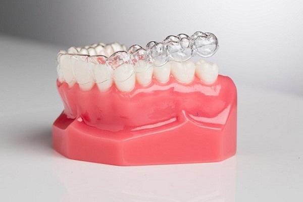 niềng răng trong suốt,niềng răng trong suốt giá bao nhiêu,niềng răng trong suốt giá,niềng răng trong suốt có hiệu quả không,niềng răng trong suốt có tốt không,niềng răng trong suốt có đau không,niềng răng trong suốt mất bao lâu,các loại niềng răng trong suốt,niềng răng trong suốt clear aligner,niềng răng trong suốt invisalign,niềng răng trong suốt là gì,niềng răng trong suốt giá bao nhiêu tiền,niềng răng trong suốt giá rẻ,nẹp răng trong suốt,niềng răng trong suốt bao lâu
