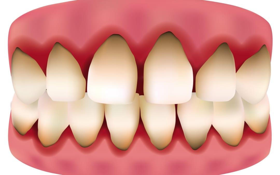 răng bị ố đen ở chân răng phải làm sao,răng bị ố đen,răng bị ố đen phải làm sao,răng bị ố đen ở chân răng,cách tẩy răng bị ố đen,chữa răng bị ố đen,tại sao răng bị ố đen,nguyên nhân răng bị ố đen,cách làm trắng răng bị ố đen