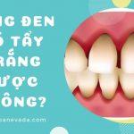 Răng đen là gì? Răng đen có tẩy trắng được không?