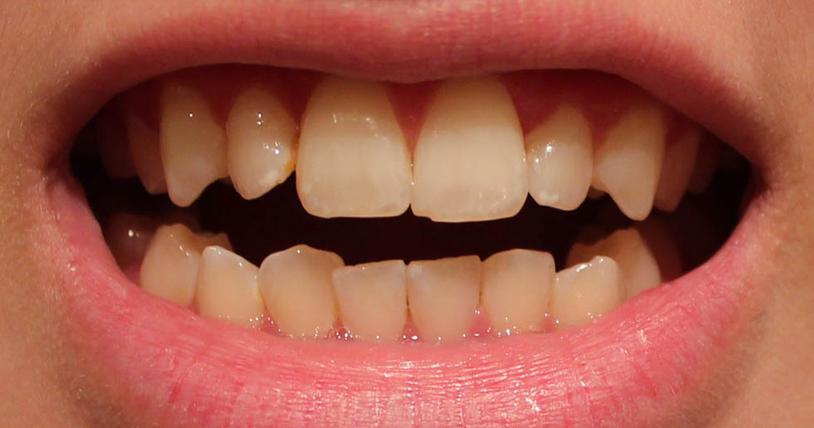 răng đen có tẩy trắng được không, cách làm sạch mảng bám đen trên răng , tẩy mảng bám đen trên răng, răng đen chữa bằng cách nào, răng đen ở trẻ em, răng đen là bị gì, răng đen có thể làm sáng, mảng bám đen trên răng là gì, răng bị mảng bám đen phải làm sao , cách trị chân răng bị đen tại nhà, mảng bám đen chân răng, chấm đen trên răng cửa, răng bị đen ở mặt trong, răng xuất hiện những vết đen, mảng bám đen trên răng hàm