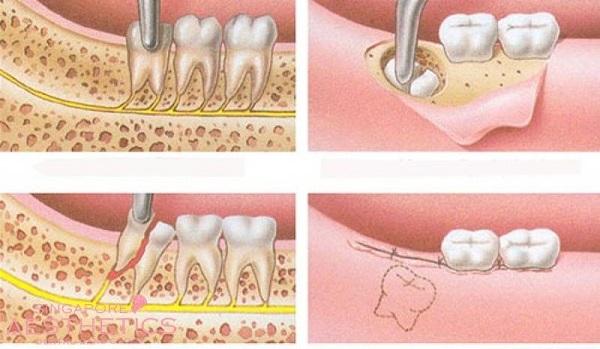 răng khôn là răng số mấy, răng khôn hàm trên là răng số mấy, răng khôn là răng số bao nhiêu, răng khôn là răng thứ mấy
