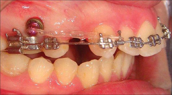 răng lòi xỉ, răng lòi xỉ có nhổ được không, răng lòi xỉ là gì, niềng răng lòi xỉ, hình răng lòi xỉ, hình ảnh răng lòi xỉ, nhổ răng lòi xỉ, bọc răng sứ cho răng lòi xỉ, răng bị lòi xỉ, răng lòi xỉ phải làm sao, răng lòi xỉ gây ảnh hưởng gì không, làm gì sau khi nhổ răng lòi xỉ,điều trị răng lòi xỉ, răng lòi xỉ có nguy hiểm không, nguyên nhân bị răng lòi xỉ, răng khểnh và răng lòi xỉ, nhổ răng lòi xỉ, niềng răng lòi xỉ, răng cửa lòi xỉ, nhổ răng lồi xỉ, hình ảnh răng lồi xỉ