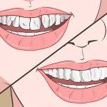 Răng lòi xỉ có nhổ được không? Nhổ răng lòi xỉ có nguy hiểm không?