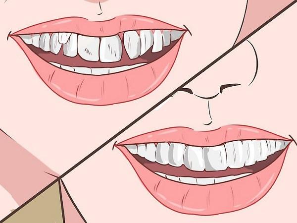 răng lòi xỉ,răng lòi xỉ có nhổ được không,hình răng lòi xỉ,hình ảnh răng lòi xỉ,răng lòi xỉ phải làm sao,răng lòi xỉ gây ảnh hưởng gì không,làm gì sau khi nhổ răng lòi xỉ,điều trị răng lòi xỉ,răng lòi xỉ có nguy hiểm không,nguyên nhân bị răng lòi xỉ,răng khểnh và răng lòi xỉ,răng lòi xỉ là gì,nhổ răng lòi xỉ,niềng răng lòi xỉ,bọc răng sứ cho răng lòi xỉ,răng bị lòi xỉ