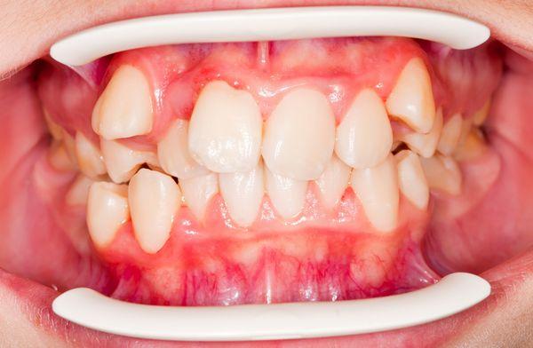 răng mọc lộn xộn phải làm sao,răng mọc lộn xộn,răng mọc lộn xộn phải làm sao,nguyên nhân răng mọc lộn xộn,răng mọc lộn xộn bọc sứ được không,răng mọc lộn xộn là gì,quy trình bọc sứ răng mọc lộn xộn,bọc sứ răng mọc lộn xộn giá bao nhiêu,chi phí bọc sứ răng mọc lộn xộn,răng hàm dưới mọc lộn xộn