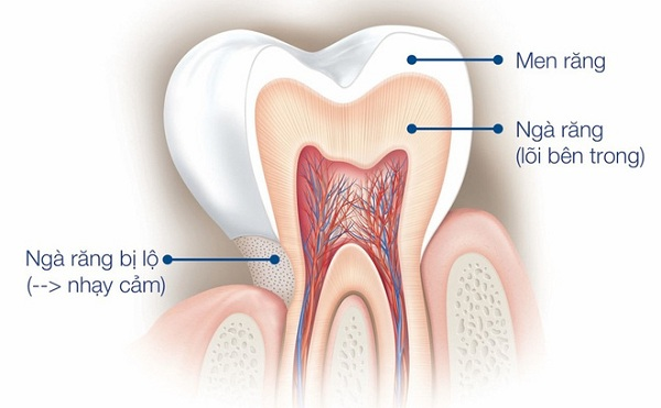 Răng nhạy cảm là gì?