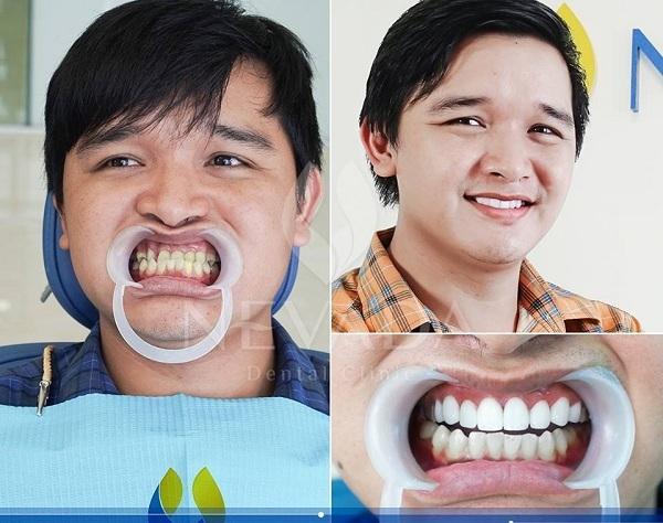 răng nhiễm fluor có tẩy trắng được không, răng nhiễm fluor là gì,răng nhiễm fluor tẩy trắng,điều trị răng nhiễm fluor,nguyên nhân răng nhiễm fluor,cách làm trắng răng nhiễm fluor,răng nhiễm fluor, răng nhiễu màu flour