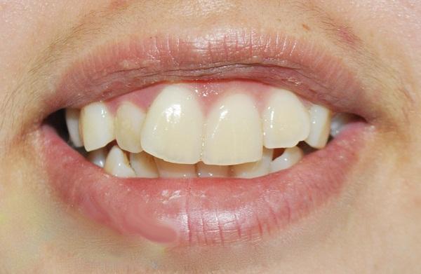 răng vẩu là gì