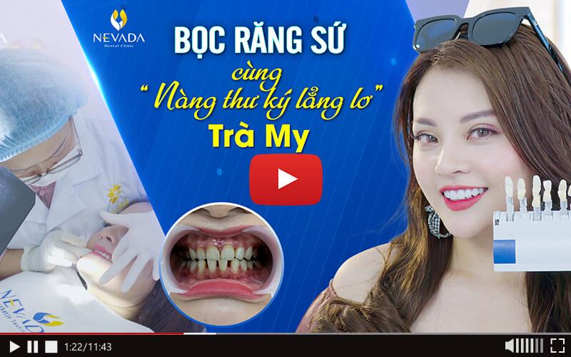 bọc răng sứ ở đâu tốt, bọc răng sứ giá rẻ, bọc răng sứ tại hà nội, làm răng sứ ở đâu đẹp, địa chỉ bọc răng sứ, làm răng ở đâu tốt nhất hà nội, bọc răng sứ hà nội, bọc răng sứ ở đâu tốt tphcm, làm răng sứ ở đâu tốt nhất tphcm, địa chỉ bọc răng sứ tốt ở hà nội, làm răng sứ ở đâu tốt nhất hà nội, bọc răng sứ ở đâu tốt tại hà nội, bọc răng sứ ở hà nội, làm răng sứ uy tín tại hà nội, bọc răng sứ ở đâu, bọc răng sứ uy tín, làm răng sứ tốt ở hà nội, bọc răng sứ uy tín tphcm, làm răng sứ thẩm mỹ ở hà nội, bọc răng sứ ở đâu tốt nhất hà nội, bọc răng sứ uy tín tại hà nội, địa chỉ bọc răng sứ uy tín, làm răng sứ ở đâu tốt, bọc răng sứ ở đâu tốt nhất, làm răng sứ uy tín, làm răng sứ hà nội, làm răng sứ thẩm mỹ ở đâu đẹp, bọc răng sứ uy tín hà nội, răng sứ thẩm mỹ hà nội, bọc răng vàng hà nội, trồng răng sứ ở đâu tốt nhất, bọc răng sứ quận 1, làm răng sứ ở hà nội, làm răng sứ ở đâu tốt nhất, bọc răng sứ tốt ở hà nội, bọc răng sứ thẩm mỹ ở hà nội, bọc răng sứ tại hồ chí minh, bọc răng sứ ở đâu uy tín, răng sứ thẩm mỹ uy tín tại hà nội, răng sứ hà nội, trồng răng sứ ở đâu tốt, làm răng sứ ở đâu uy tín