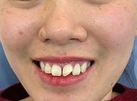 răng sứt