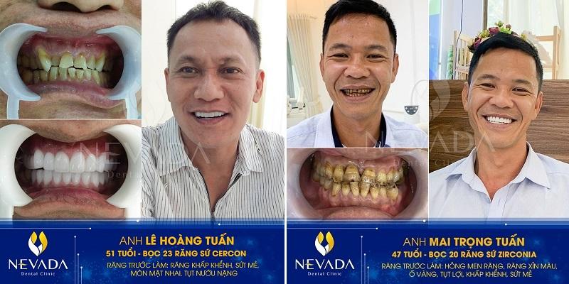 bọc răng sứ ở đâu tốt TPHCM, Nên bọc răng ở đâu tốt nhất tphcm, bọc răng sứ ở đâu tốt tphcm, răng sứ ở đâu HCM, bọc răng sứ ở đâu uy tín tại tphcm, Bọc răng sứ thẩm mỹ ở đâu tốt nhất tphcm, nên bọc răng sứ ở đâu tphcm, bọc răng sứ ở đâu tốt nhất tphcm