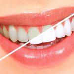 Cạo vôi răng có đau không? Cạo vôi răng có chảy máu không?