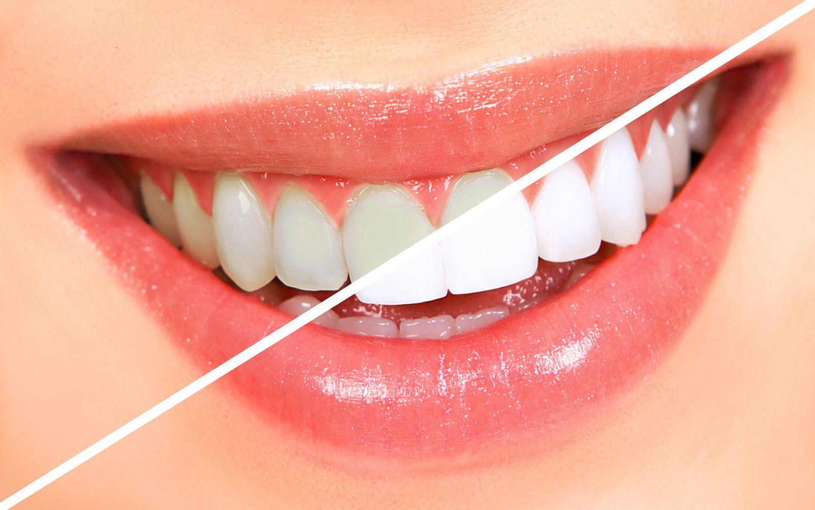 cạo vôi răng, Cạo vôi răng có đau không, cạo vôi răng có đau ko, cạo vôi răng có đau không webtretho, cạo vôi răng có đau, cạo vôi răng có chảy máu không, quy trình, niềng răng mắc cài, kim loại,