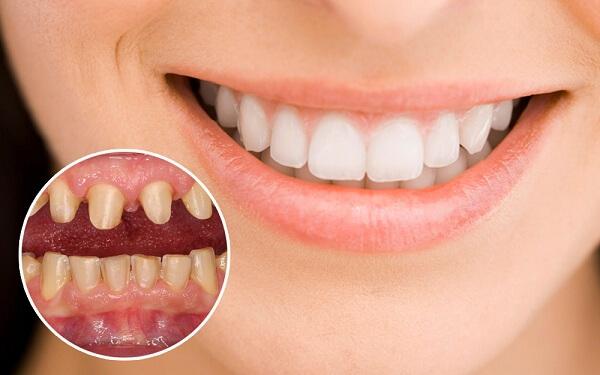 bọc răng sứ 2 răng cửa bao nhiêu tiền, bọc răng sứ 2 răng cửa giá bao nhiêu, giá bọc răng sứ 2 răng cửa, bọc răng sứ cho 2 răng cửa, bọc răng sứ 2 răng cửa, làm răng sứ 2 răng cửa
