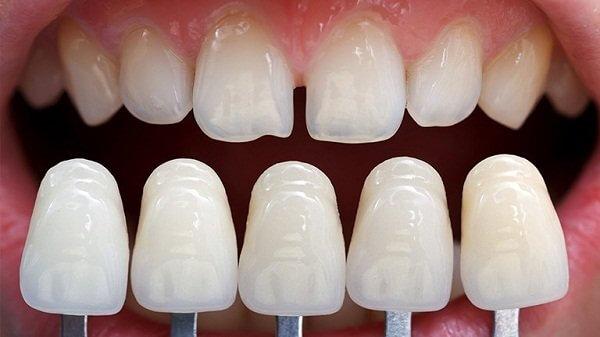 Giá bọc răng sứ 2 răng cửa bao nhiêu tiền?