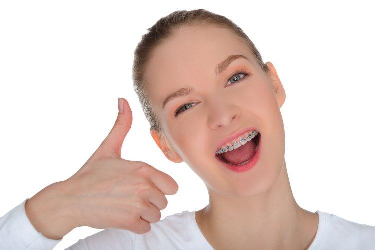 Niềng răng trả góp lãi suất 0%