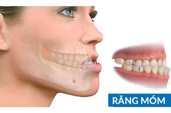 Hàm răng xấu phải làm sao?