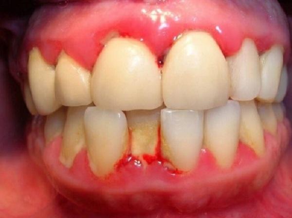 làm trắng răng bằng lá trầu không, cách làm trắng răng bằng lá trầu không, cách làm trắng răng bằng lá trầu
