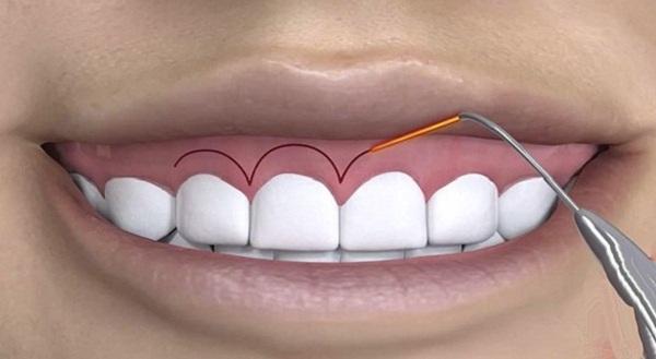 Mài xương ổ răng giá bao nhiêu?