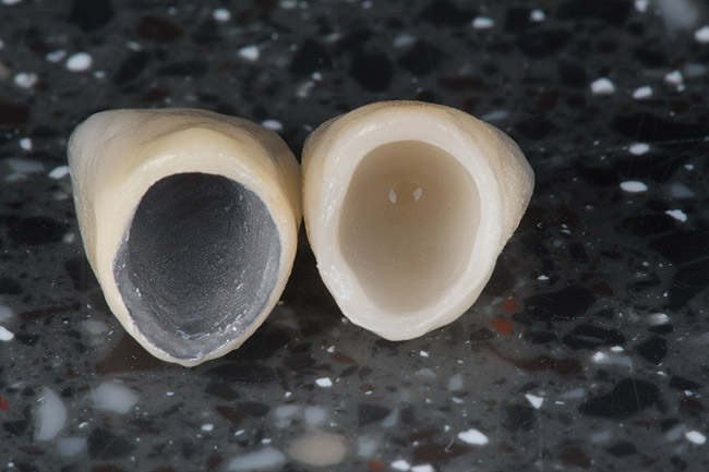 phục hình răng sứ là gì