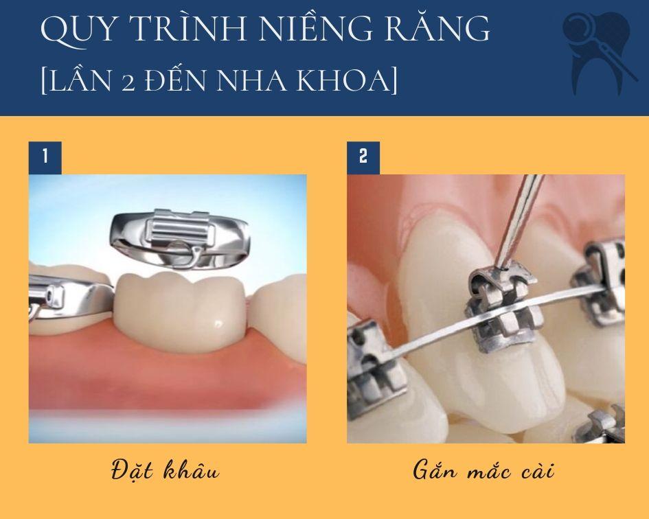 Quy trình niềng răng mắc cài kim loại