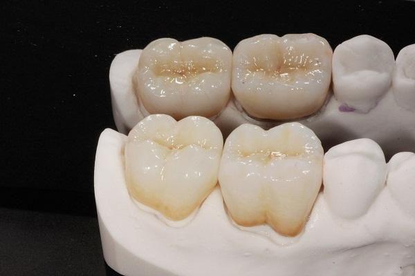 bọc răng sứ titan giá bao nhiêu, bọc răng sứ titan, bọc răng sứ titan có tốt không, giá bọc răng sứ titan, quy trình bọc răng sứ titan, hình ảnh bọc răng sứ titan, bọc răng sứ titan được bao lâu, bọc răng sứ titan có bị đen không, có nên bọc răng sứ titan, có nên bọc răng sứ titan không, bảng giá bọc răng sứ titan