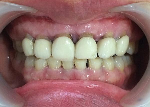 review bọc răng sứ titan