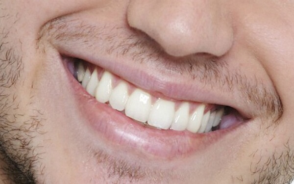 Tẩy trắng răng có được uống bia không? Mẹo duy trì kết quả tẩy trắng răng sau khi uống bia