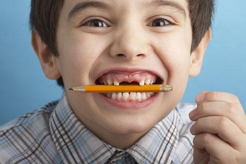 Lứa tuổi thay răng sữa và mọc răng vĩnh viễn ở trẻ, tuổi thay răng sữa, mấy tuổi thay răng sữa, thay răng sữa ở trẻ, trẻ em thay răng sữa lúc mấy tuổi, trình tự thay răng sữa