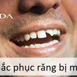 Khắc phục răng sứ bị mẻ có thể hàn trám hay phải thay mới hoàn toàn| Điều bạn cần biết để tránh mất tiền oan