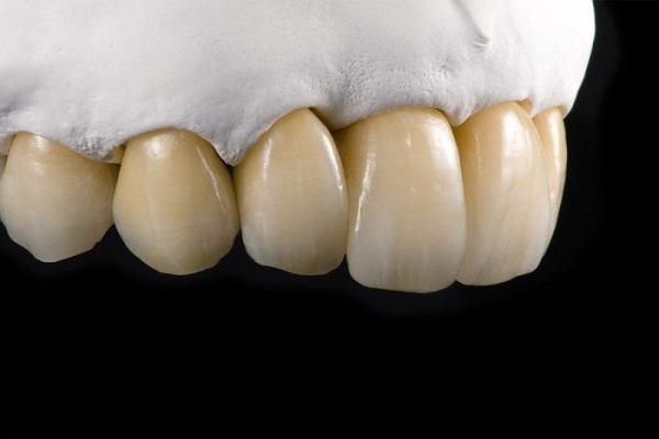 bọc răng sứ có tẩy trắng được không, răng bọc sứ có tẩy trắng được không, bọc răng sứ rồi có tẩy trắng được không