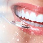 """Bọc sứ răng cửa giá bao nhiêu? Liệu chi phí có cản trở bạn tìm đến nụ cười """"tỏa nắng""""?"""