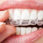 Chi phí niềng răng vô hình giá bao nhiêu? Bảng giá hot nhất 2019